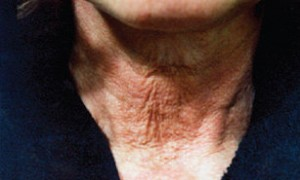 Before Active Vitamin Facial Treatments. Treating loss of structural integrity and elastosis.